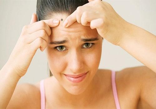 Tẩy nốt ruồi bao lâu thì được rửa mặt?