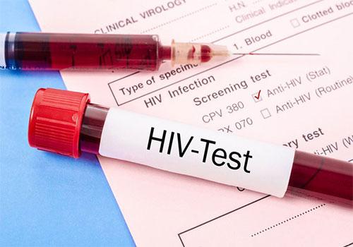 Test nhanh HIV sau 12 tuần có chính xác không?