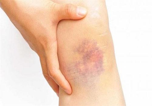Thỉnh thoảng xuất hiện vết bầm tím trên da có sao không?