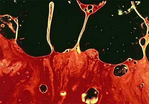 Tinh trùng màu nâu là bị gì? Cách chữa trị