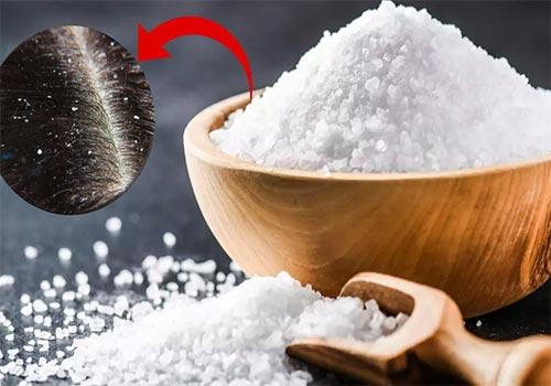 Trị nấm da đầu bằng muối có được không?