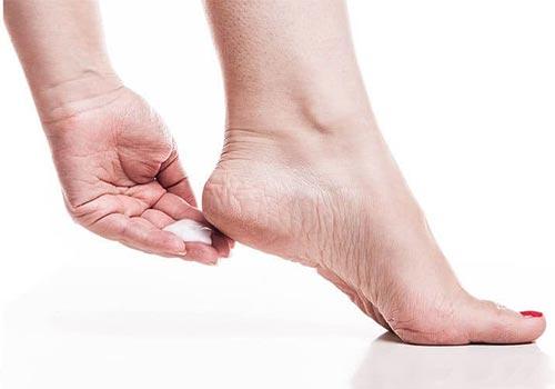 Trị nứt gót chân bằng kem đánh răng có hiệu quả không?
