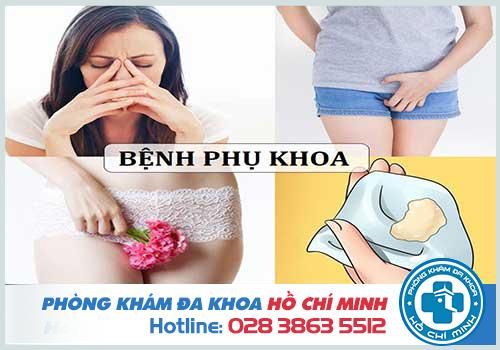 Tư vấn bệnh phụ khoa online qua điện thoại Miễn Phí 24 giờ