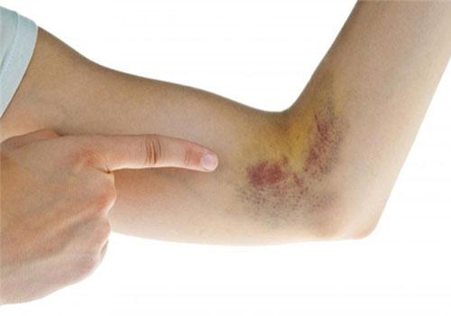 Vết bầm tím trên da không rõ nguyên nhân là bị gì? Cách trị?