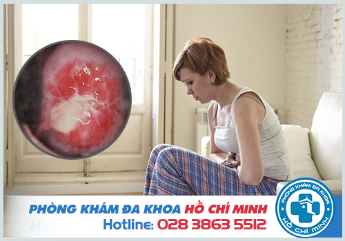 Triệu chứng viêm lộ tuyến cổ tử cung
